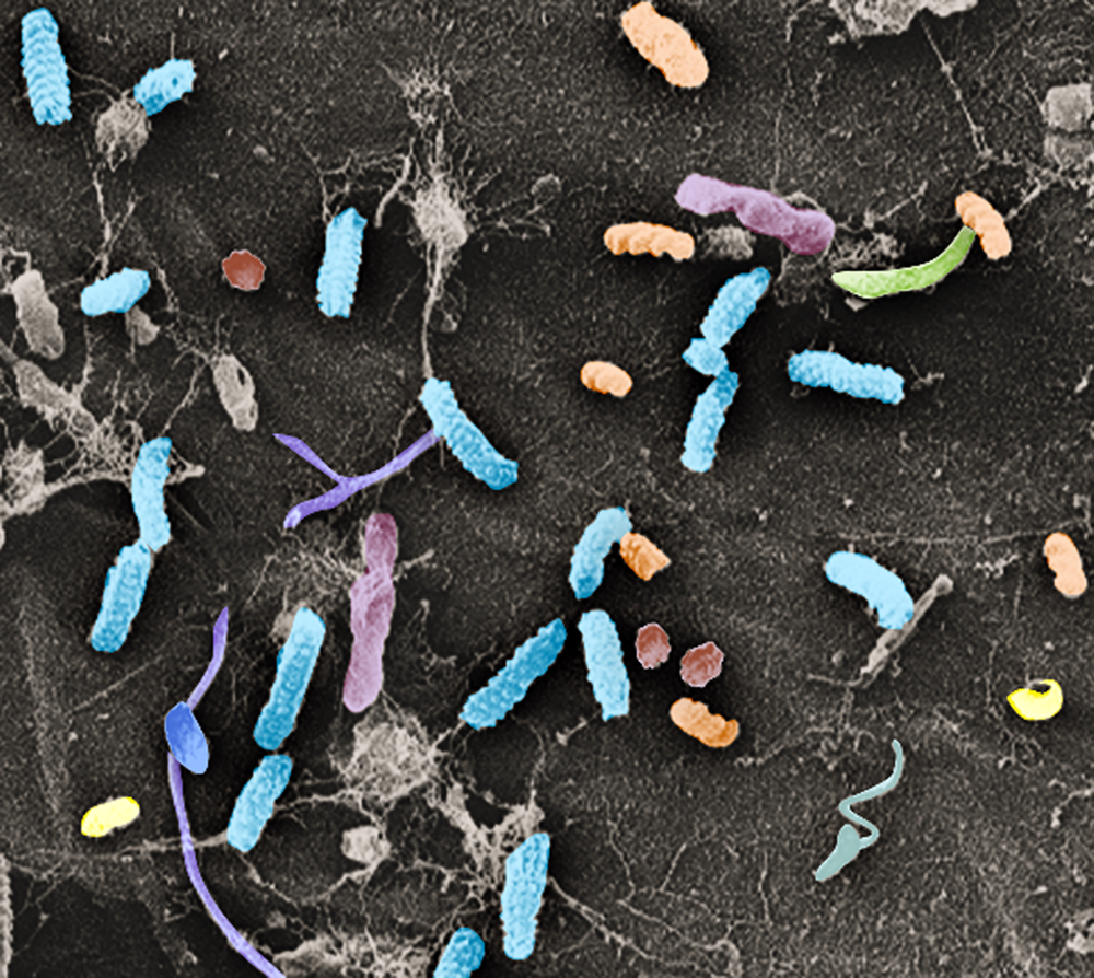 Scanning electron microscopy image of diverse bacteria on the surface of Arabidopsis thaliana roots.